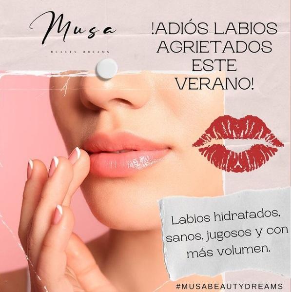 Cuida tus labios de la mejor manera posible.
